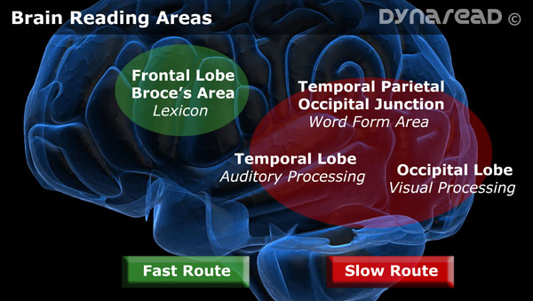 A diagram of the reading areas in the brain